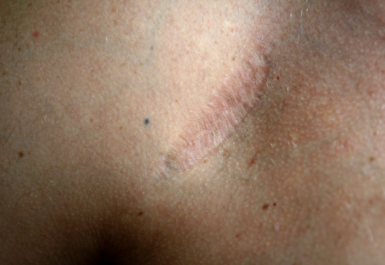 Matt Evans, 35, in roofing sales from Bloomfield, Michigan, says that the implanted port was about the size of a grape and stayed just beneath his skin during chemotherapy and radiation treatments. The doctos also used four small black tattoos, one that is shown, in a diamond formation around the targeted area for radiation.