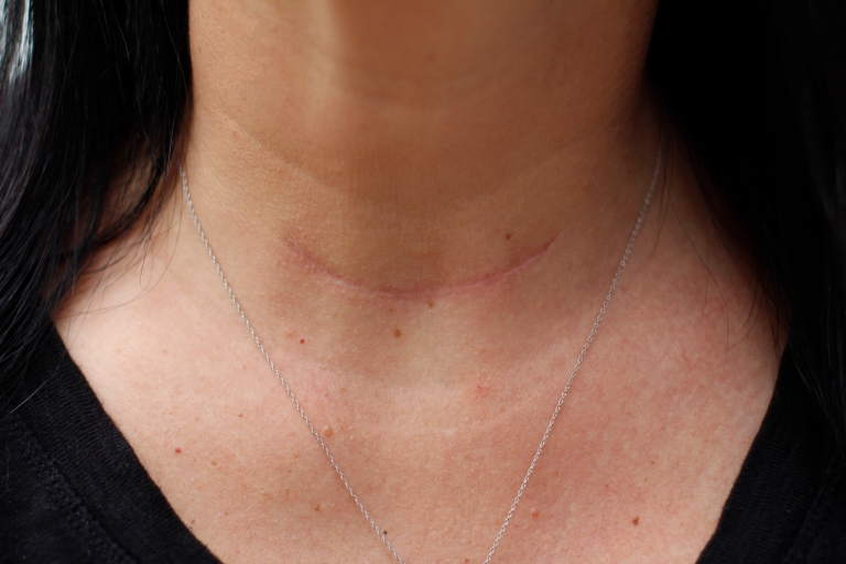 Shannon Newsome, 37, a business owner from Savannah, Georgia, likes to use her scar as a conversation starter about thyroid health.