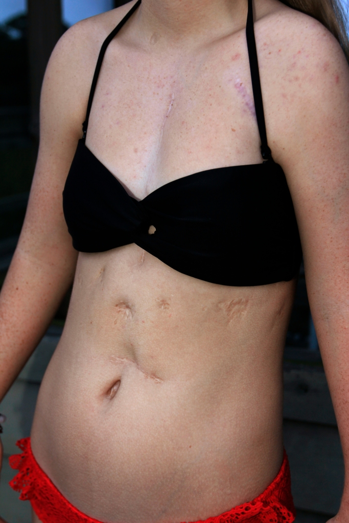 Amanda Rice, 17, from Savannah, Georgia, says that she has never felt self conscious about her scars. She likes to inspire other people with the stories of how she got her scars.